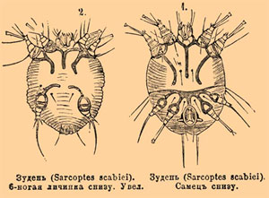 колонии паразитов в человеке